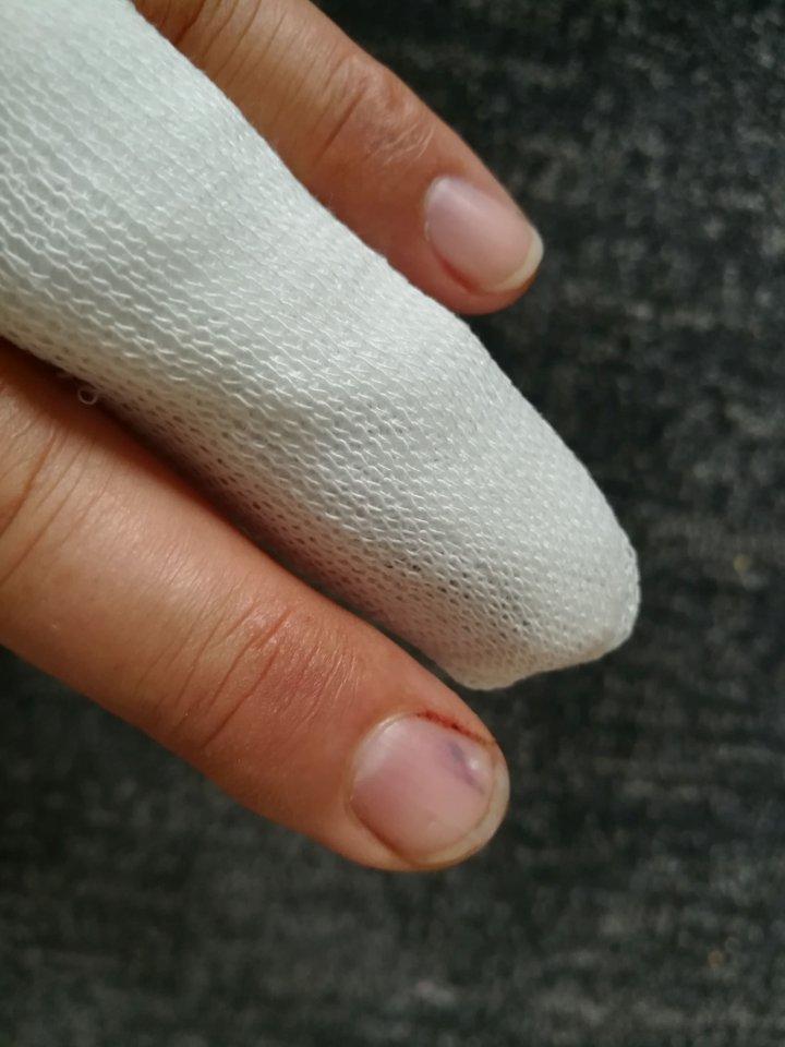 Abgetrennt heilung fingerkuppe DER OP